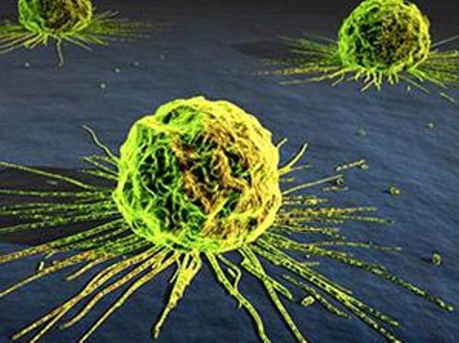 Crean Espray  Fluorescente  que facilitara  Detectar las células Cancerosas