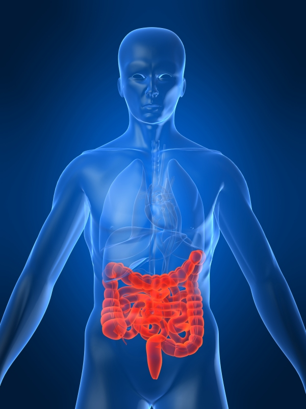 Colon-Cancer-l