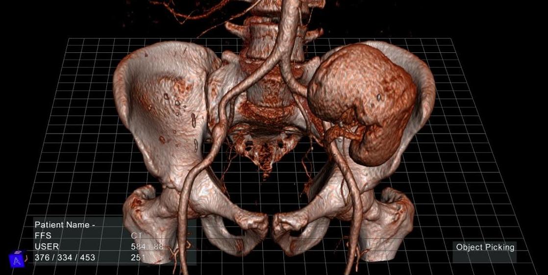 Patentan en EU hologramas médicos 3D, inventados en México