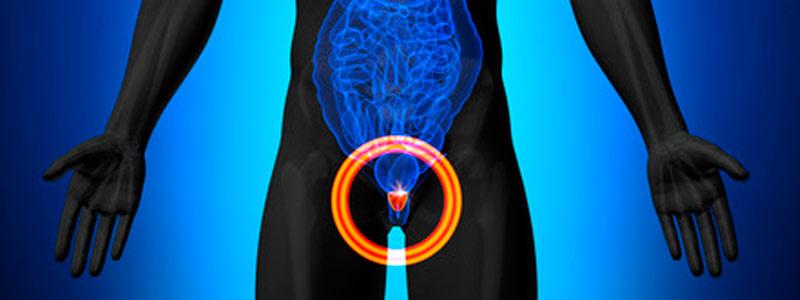 nervios de la próstata