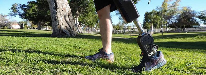 Prótesis biónicas con sentido social