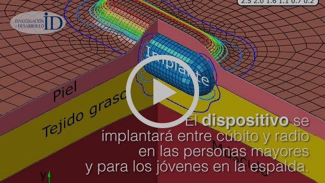 Desarrollan científicos mexicanos implante en piel para medir glucosa en sangre y presión arterial