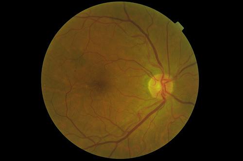 Uno de cada 10 mexicanos con diabetes puede estar en riesgo de ceguera o visión limitada